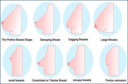 jenis-dan-bentuk-payudara